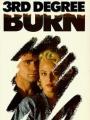 Third Degree Burn 1989